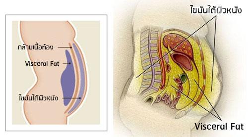 ไขมันที่อันตรายในช่องท้อง ไม่ใช่ความอ้วนที่เอว แต่คือไขมันพอกอวัยวะภายใน Visceral FAT